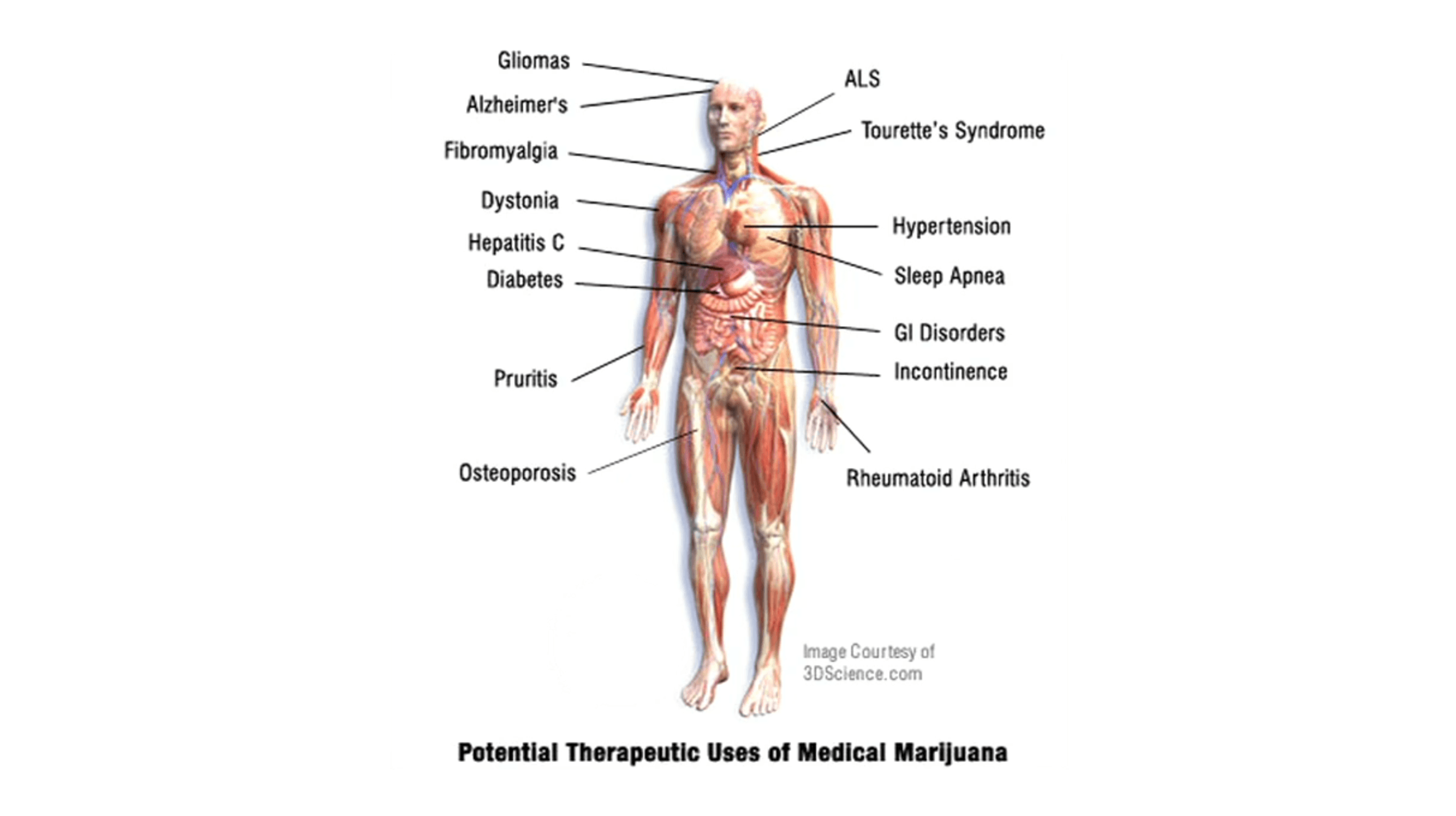 Cannabis on Human Health Docu